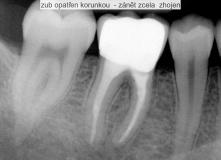 endodoncie - zalomený nástroj v kořenovém kanálku před a po