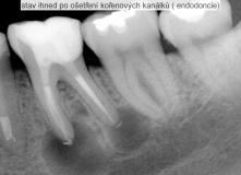 zub s rozsáhlým zánět v oblasti kořene - endodoncie - léčba - před a po